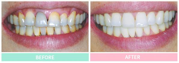 審美歯科症例その2