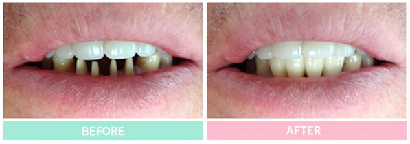 審美歯科症例その1